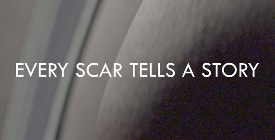 2017 Webby Winner - Every Scar Tells A Story